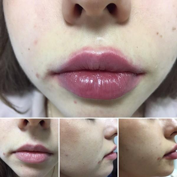 Коррекция губ до и после