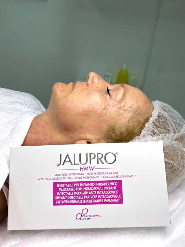 Биоревитализация Jalupro
