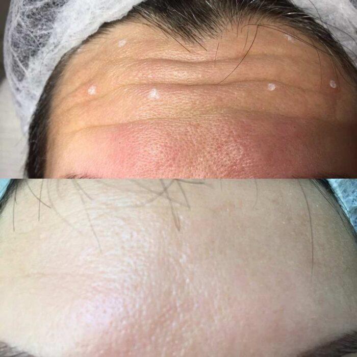 Фото ботокс терапии морщин лба: до и после