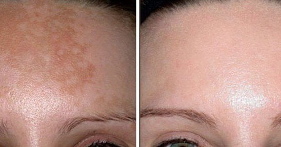 Фото до/после химического пилинга лица