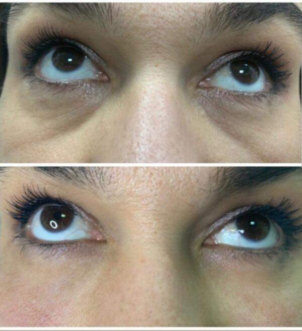 Korekcija brazda izpod očiju. Stylage S