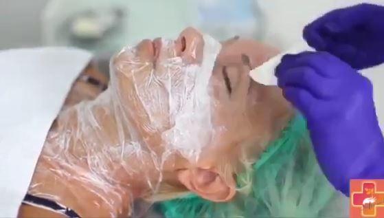 Процедура биоревитализации кожи