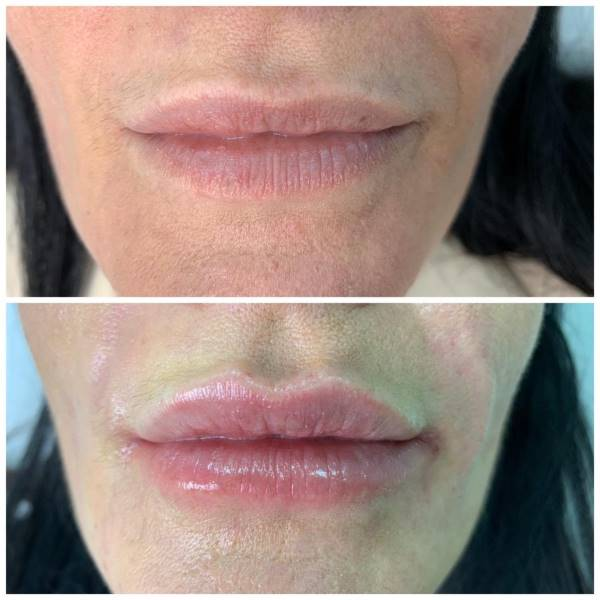 Korekcija usana i sitnih borica oko njih - Stylage Spesial Lips + Stilage