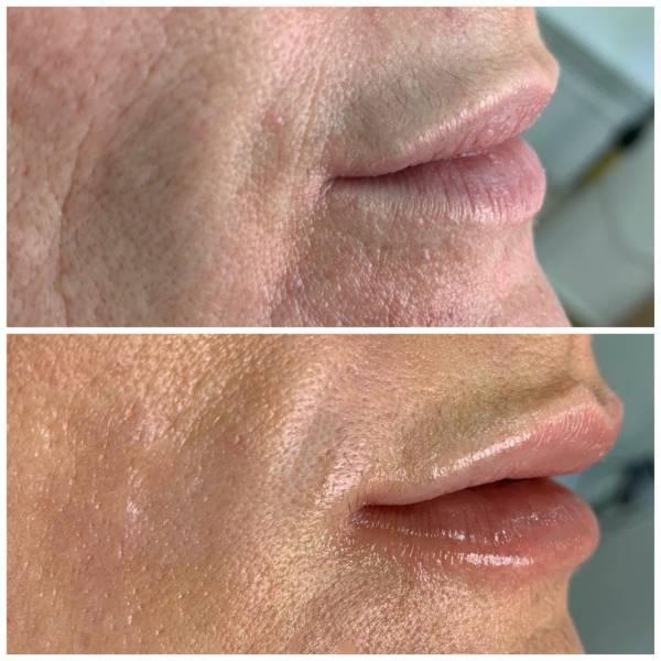 Коррекция губ и мелких морщин около них