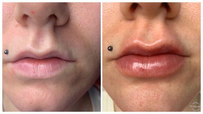 Освежение губ, Stylage Lips