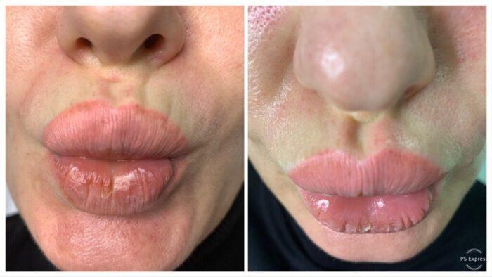 Природное заполнение морщинок над губами