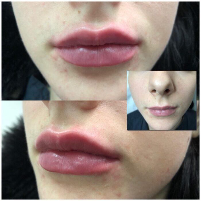 Увеличение губ с коррекцией асимметрии