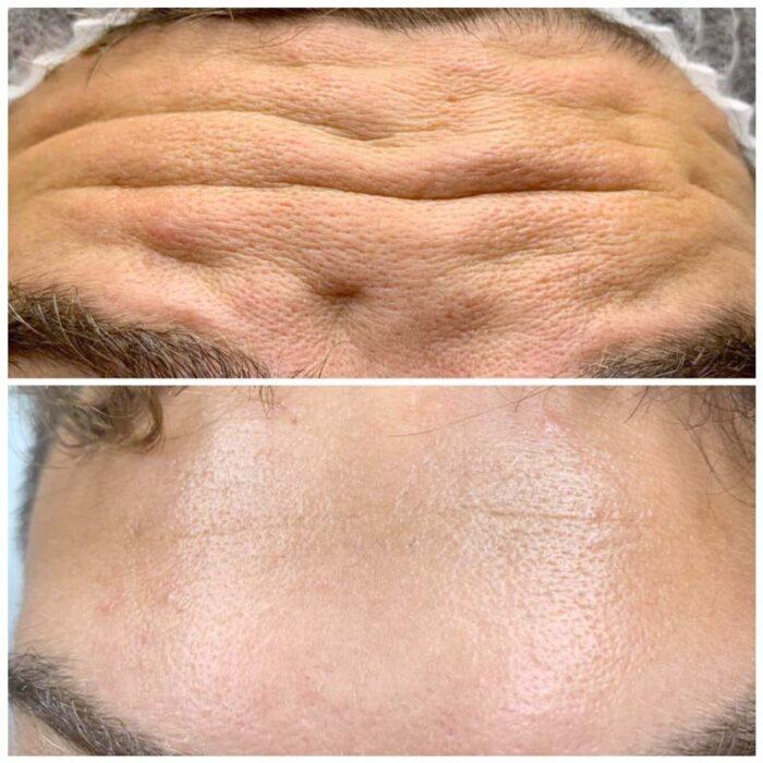 Botox za muskarca