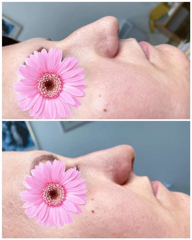 Korekcija oblika nosa