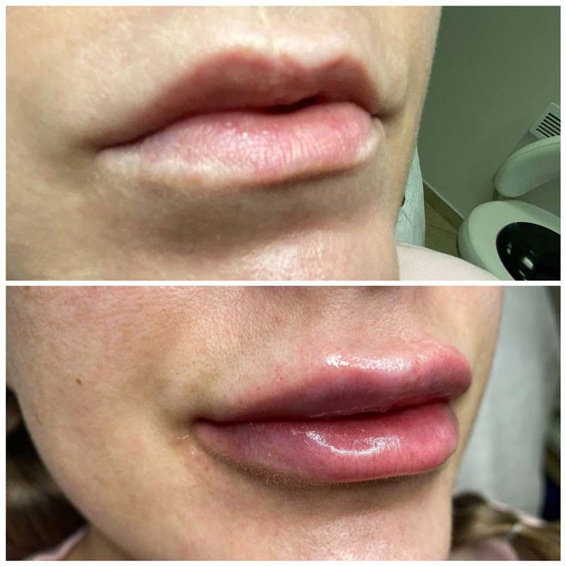 Lips Correction and Filling
